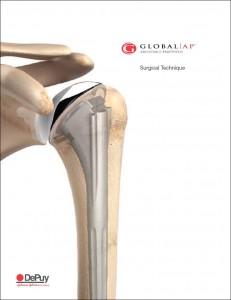 DePuyGlobal_AP_Surgical_Technique
