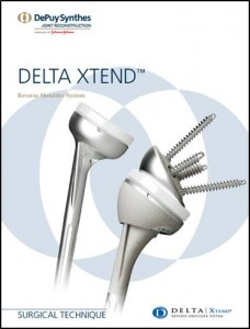 DeltaXtend
