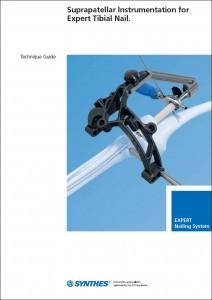 Suprapatellar Instrumentation for Expert Tibial Nail